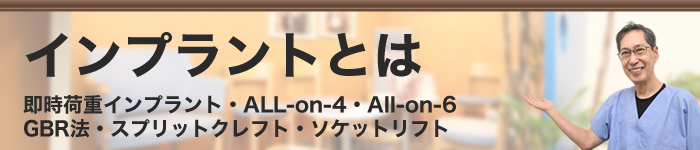 All-on-4・All-on-6
